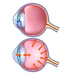 glaucoma2